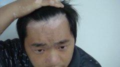 男性头部白癜风症状表现是怎样的